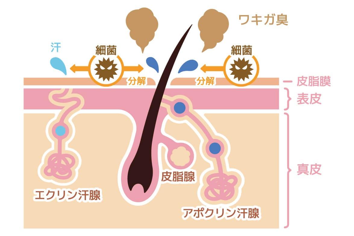 ワキガの概略イメージ